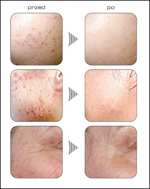 Efekty terapii LED - obrazek na stronę do opisu zabiegu